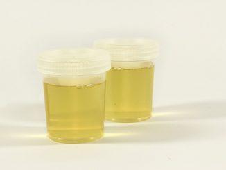 Récipient D'urine