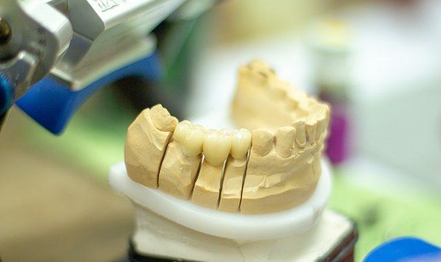 Tout ce que vous devez savoir sur l'implantologie dentaire